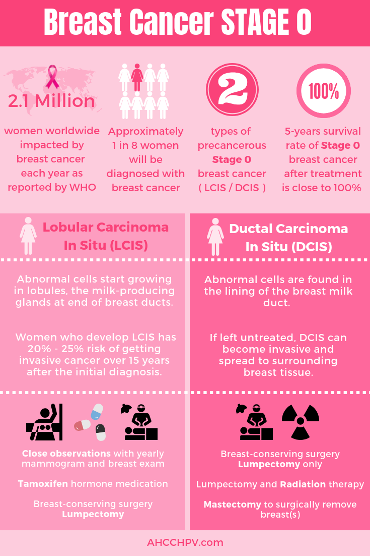 Stage 0 Breast Cancer Treatment Options